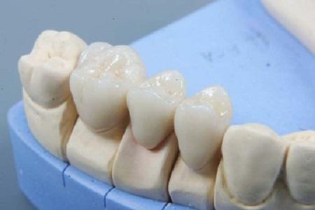 Bridgeworks In Dental Prosthetics